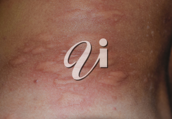 Allergy skin back and sides. Allergic reactions on the skin in the form of swelling and redness.