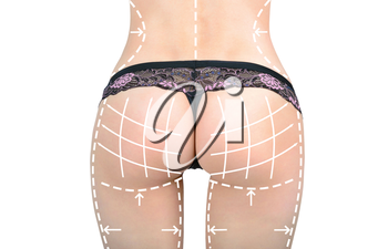 Marks on the women's buttocks, waist and legs before plastic surgery. The concept of plastic surgery